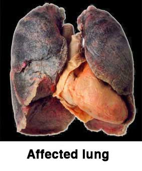 Affected lung